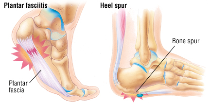 Shoes That Cause Toes To Hurt And How To Heal